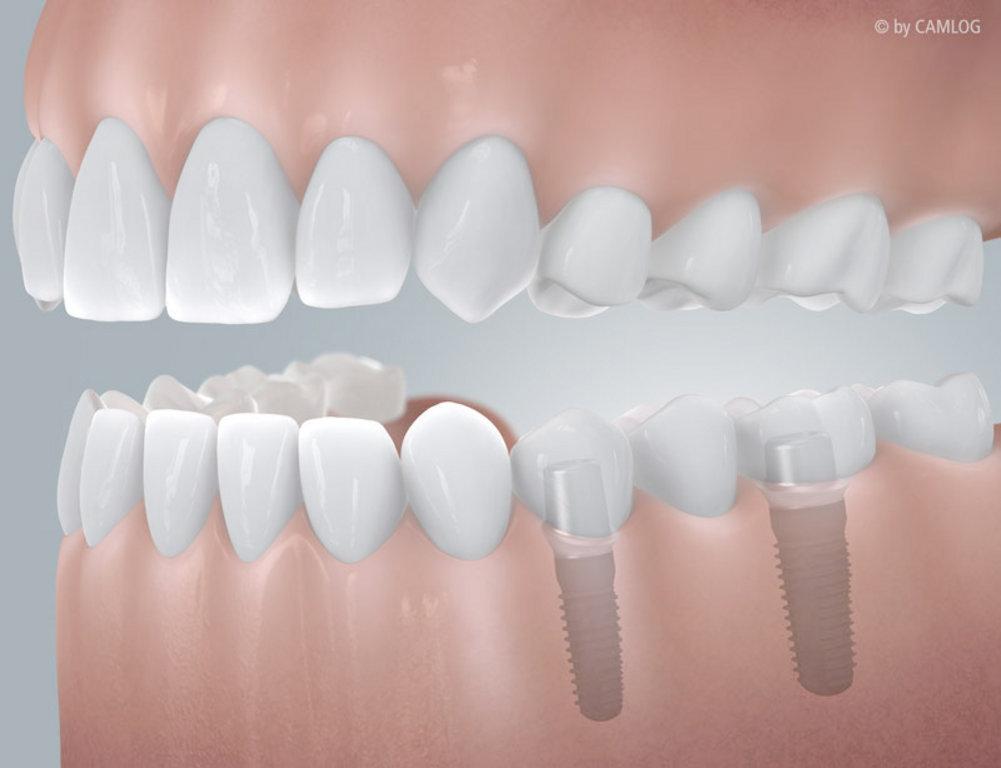 Schaltlücke mit Implantatversorgung
