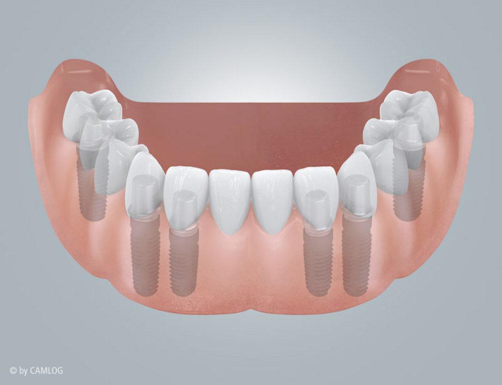 Zahnloser UK mit Brückenversorgung